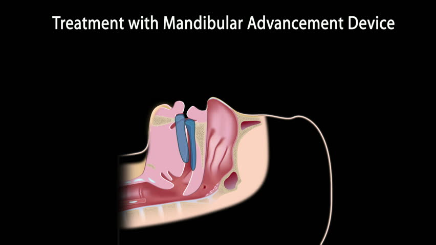 Snoring treatment with a mandibular device