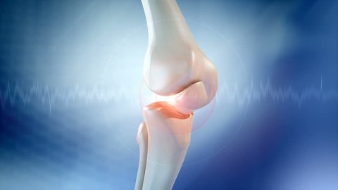 Knee pain animation. Three High Quality animations of Knee pain.