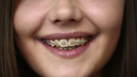 Young girl with braces on teeth looking at camera and smiling. Close up.